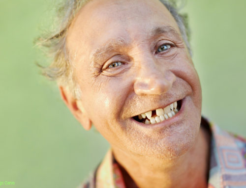 """Dr Bakeman om att ersätta en saknad tand i den """"estetiska zonen"""""""